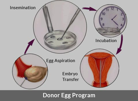 Donor Egg Program